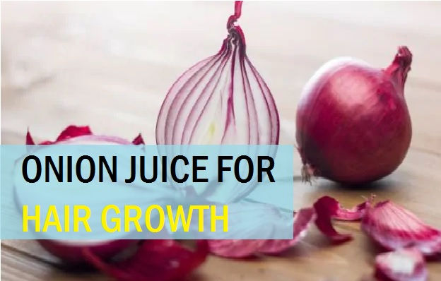 best onion juice for hair growth remedies
