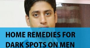 Home Remedies for Dark spots, Black spots on Men's face