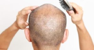 How Men Can Deal with Hair Loss Due to Stress